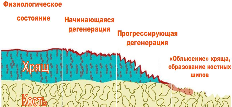 vosstanovlenie-hryashei